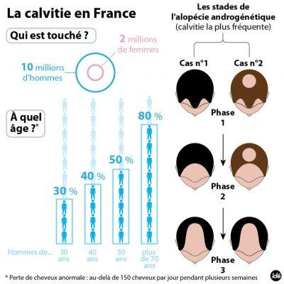 infographie calvitie