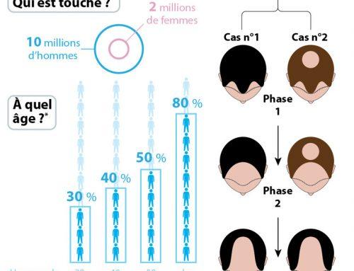 Perte de cheveux : les chiffres de l'alopécie en images